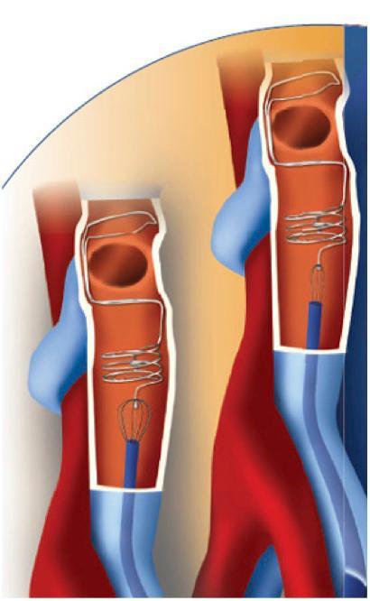 pulmonary thromboembolism treatment
