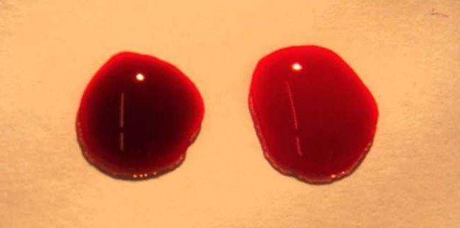 soeg on westergren blood