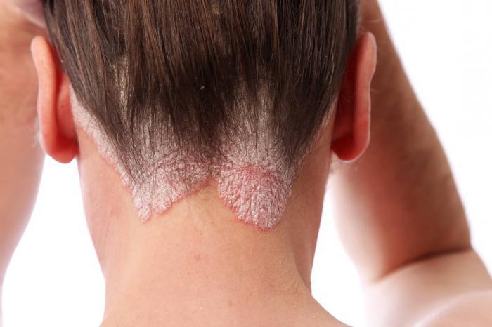 Свойства арганового масла для волос