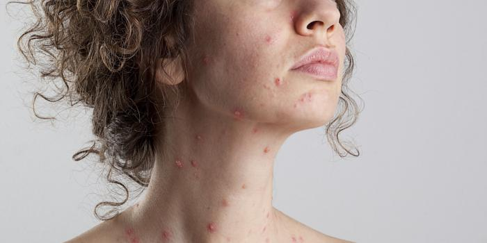 How to treat chickenpox in adults at home