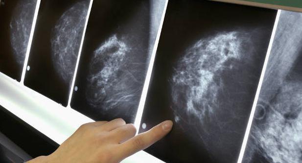 How to treat breast mastopathy