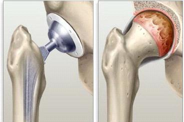 где делают операции по замене тазобедренного сустава