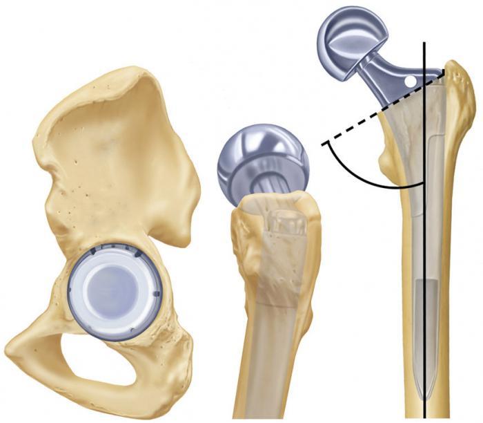 эндопротезирование тазобедренного сустава в беслане