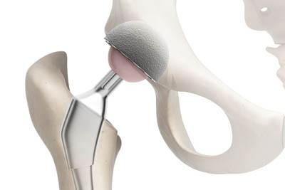 протез тазобедренного сустава