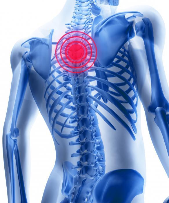 Поясничный остеохондроз как проявляется
