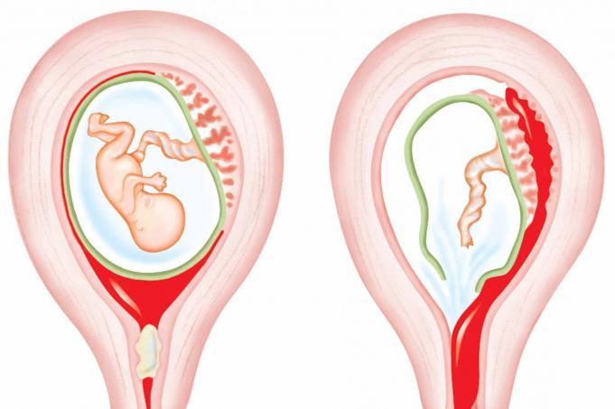 Беременность и обильные месячные