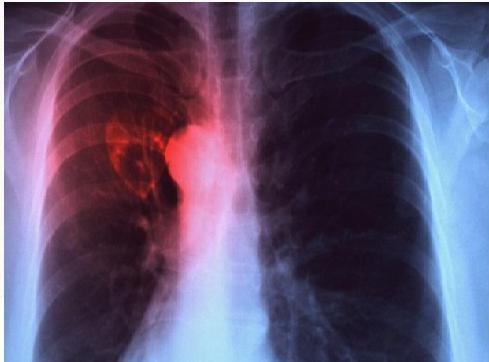 Туберкулез у детей симптомы и лечение 12