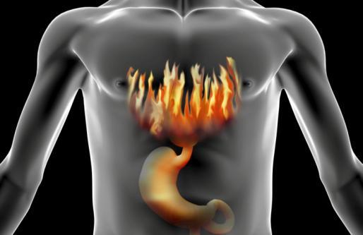 Беспокоит изжога каждый день: причины, лечение :: SYL.ru