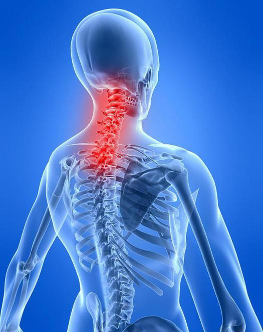 neck myositis symptoms