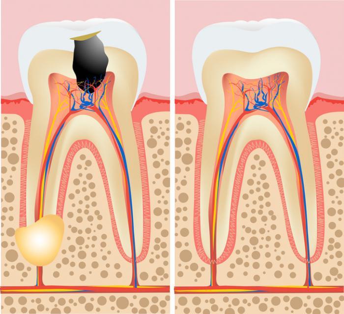 гранулема на корне зуба фото