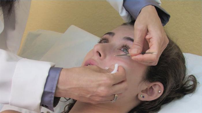 Лечение следов от акне на лице