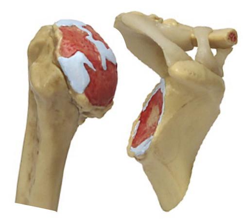 остеоартроз степени