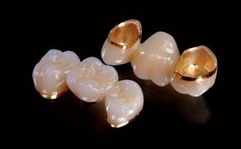 зубы металлокерамика москва
