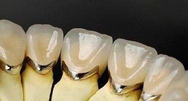 поставить зубы металлокерамика