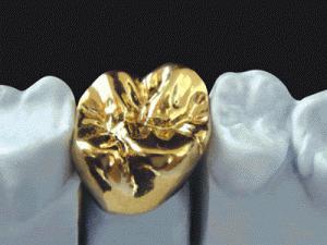 металлокерамика зубы отзывы