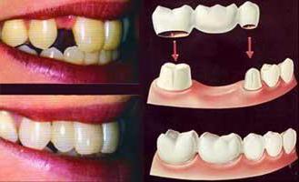 зубы металлокерамика до и после