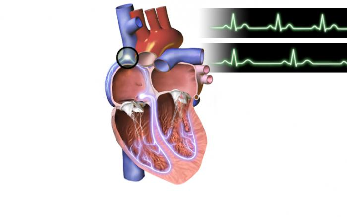 What is sinus bradycardia of the heart