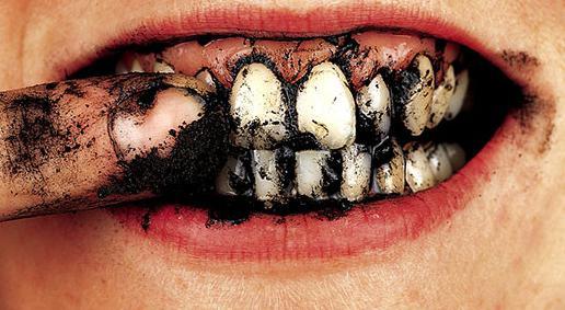 Гель для отбеливания зубов цена украина
