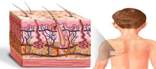 Лечение сухой экземы на теле
