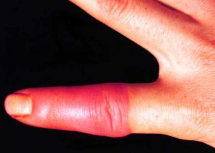 Как выглядит рожистое воспаление на руке