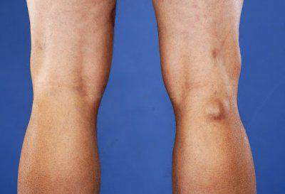 Чем лечить боль нижнечелюстного сустава