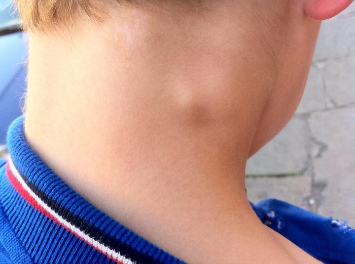 Комплекс упражнений для межпозвоночной грыжи грудного отдела