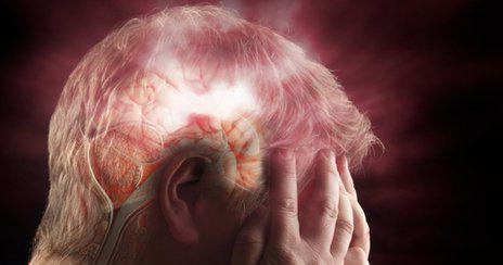 микроинсульт симптомы и последствия