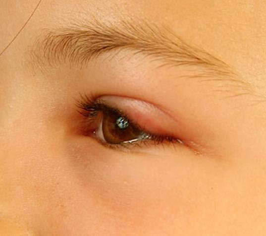 Отёк глаз у поросёнка