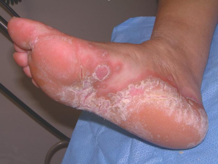 грибок на коже ног