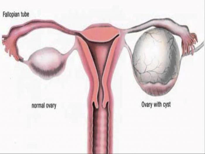Как вылечить кисту яичника без операции