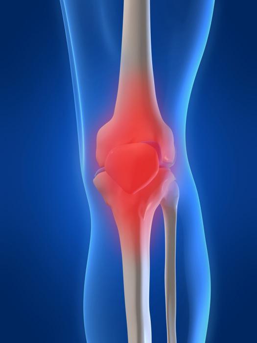 Лечение артроза коленного сустава народными средствами Ваш ортопед