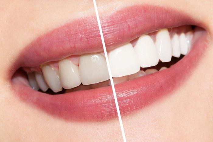 teeth whitening with tea tree oil reviews dentists