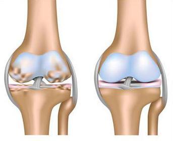 доа левого коленного сустава