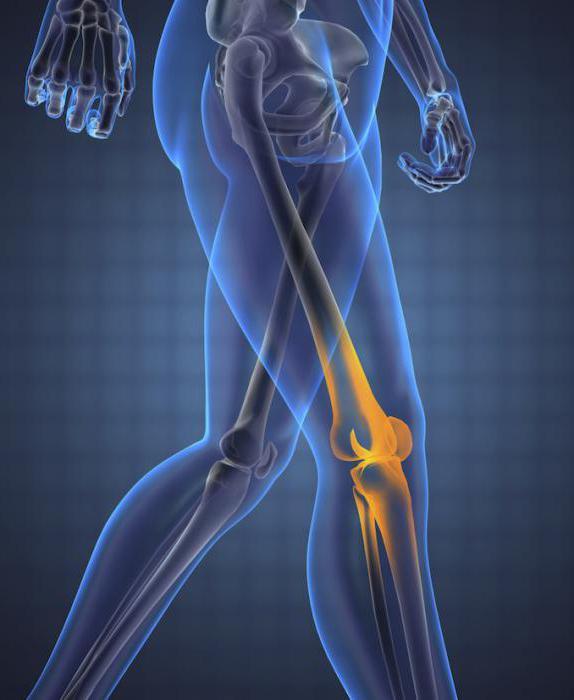 Изображение - Доа левого коленного сустава 3 степени 914254