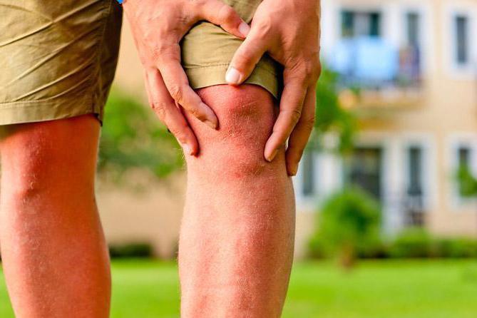 Изображение - Доа левого коленного сустава 3 степени 914255
