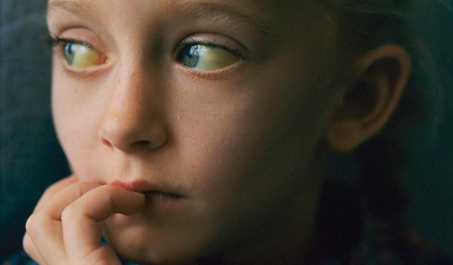 Повышенный билирубин: причины и лечение :: SYL.ru