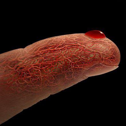 нормализовать уровень холестерина в крови