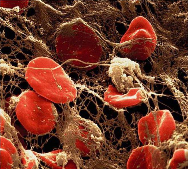 Фибриноген и замершая беременность
