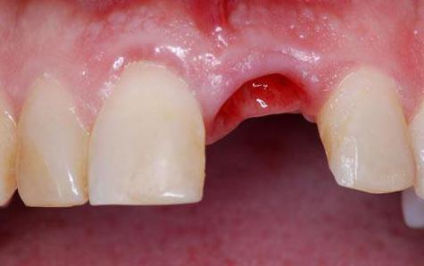 полоскать ли рот после удаления зуба