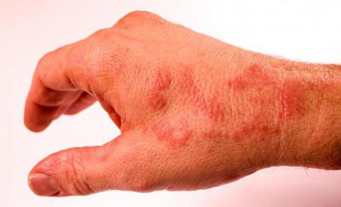 аллергия на продукты через сколько проявляется