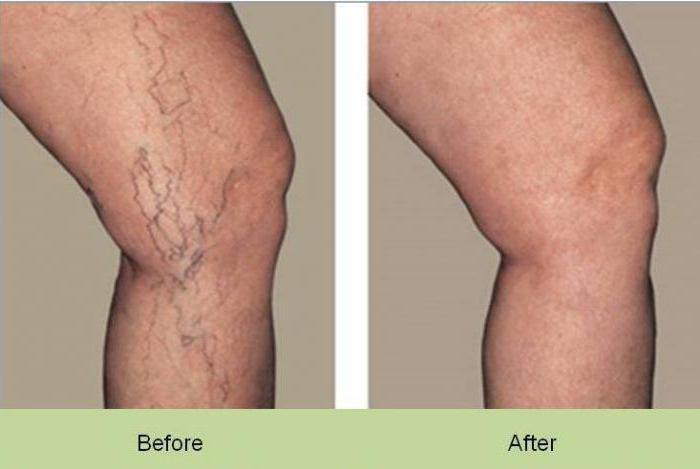 Как лечить капилляры на ногах в домашних условиях