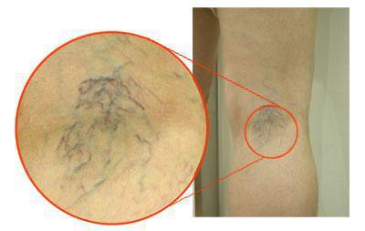 Как лечить если лопаются капилляры на ногах