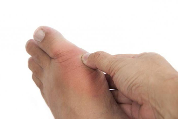 Болит кость на ноге внизу где ступня