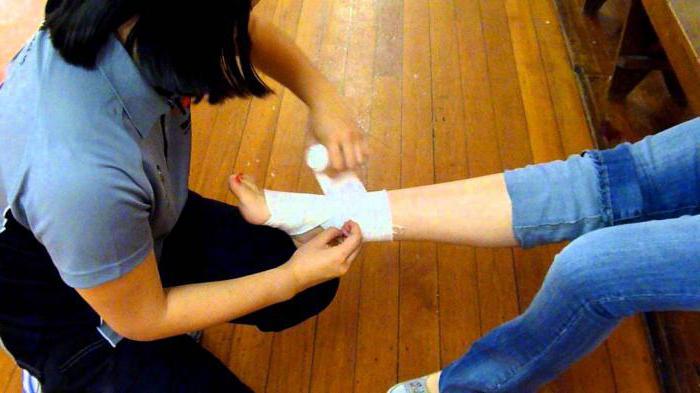 Артрит кисти руки симптомы лечение