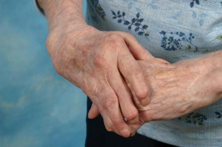 Изображение - Болят суставы рук к какому врачу обратиться 933574