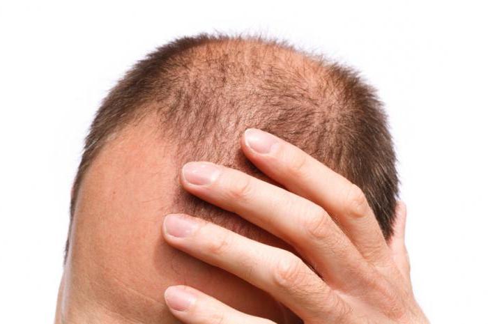 сильно лезут волосы что делать
