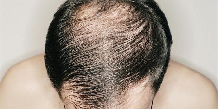 волосы лезут пучками