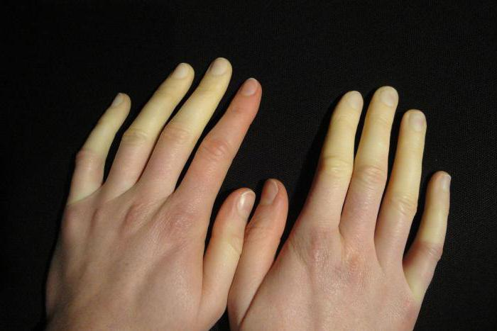 why numb tips of fingers whiten