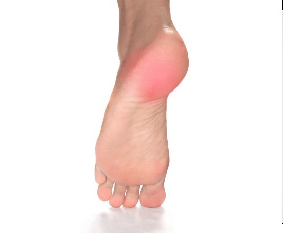 Шипы на ступнях: причины появления и методы лечения. Шипы на ногах