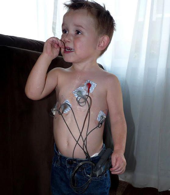 Суточный мониторинг сердца ребенку